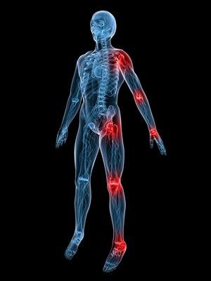 Ból ostry i przewlekły w narządach ruchu