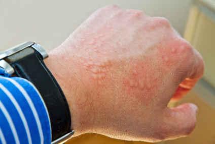 Alergia skórna